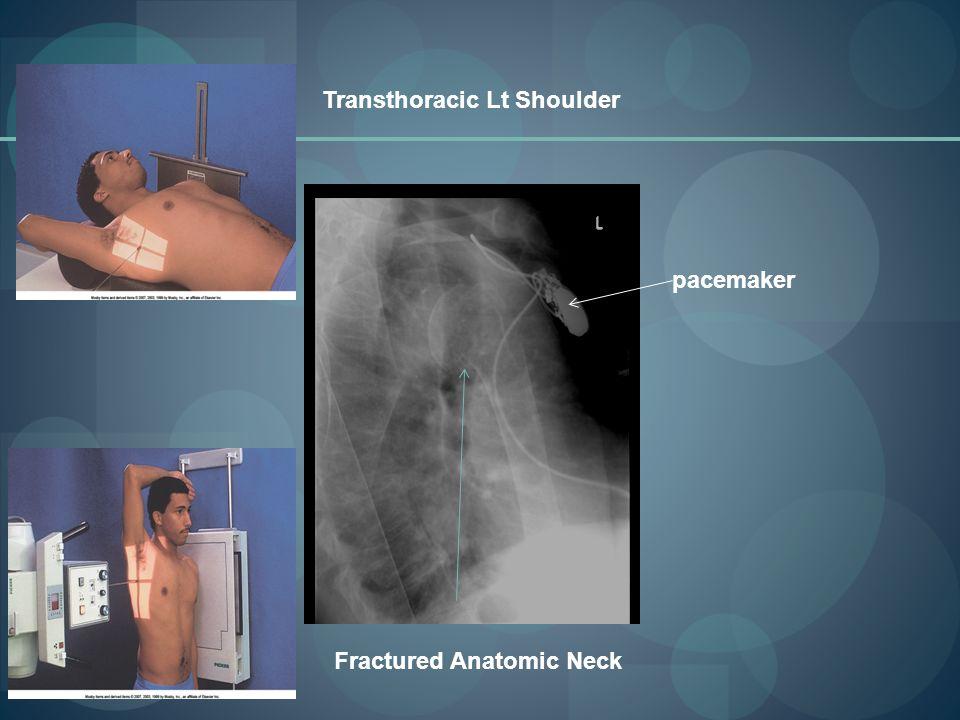 shoulder girdle ppt download