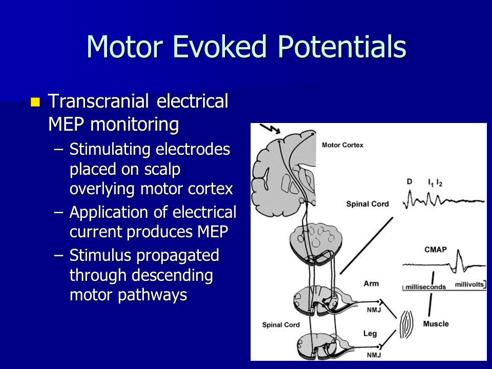 neurological monitoring ppt video online download