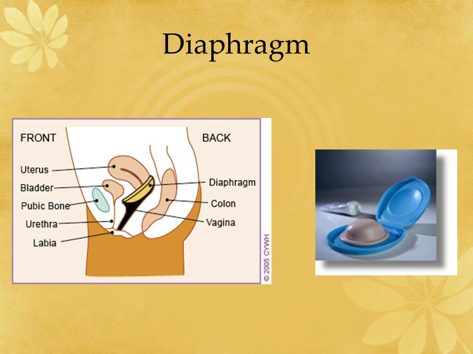 How to Put in a Cervical Cap images