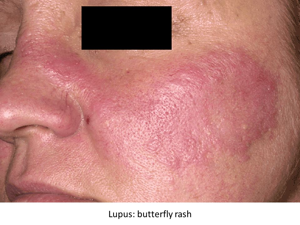 Lupus facial butterfly rash images like