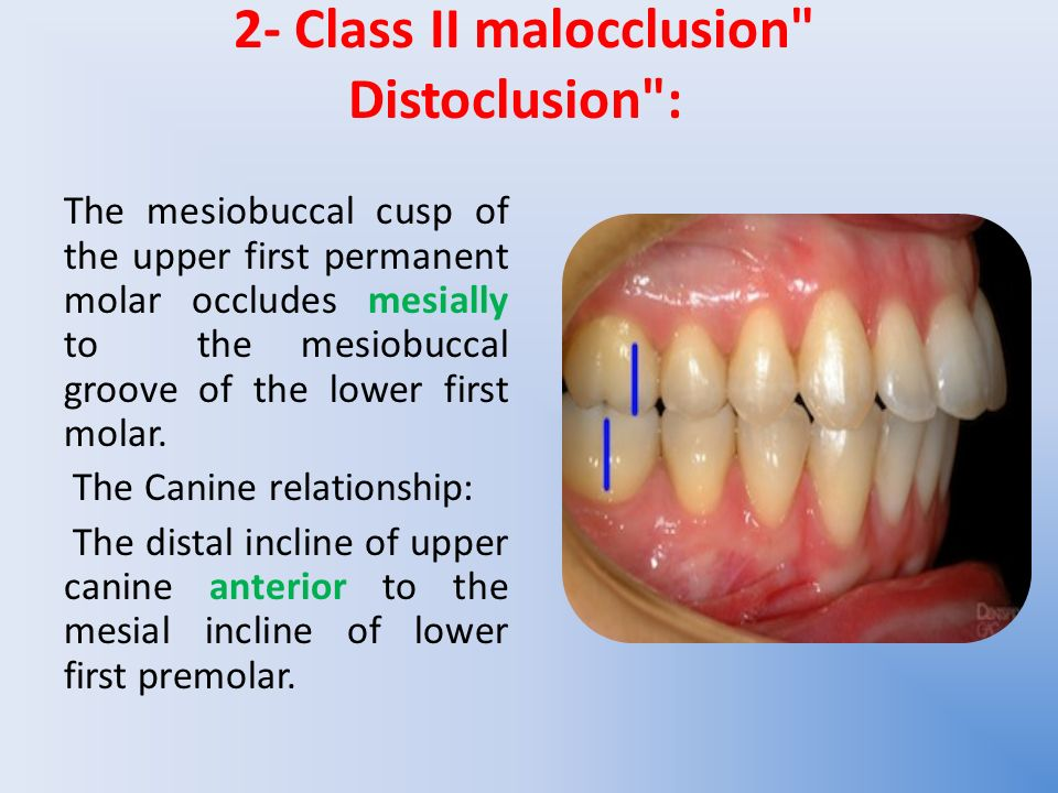 class 1 molar relationship definition essay