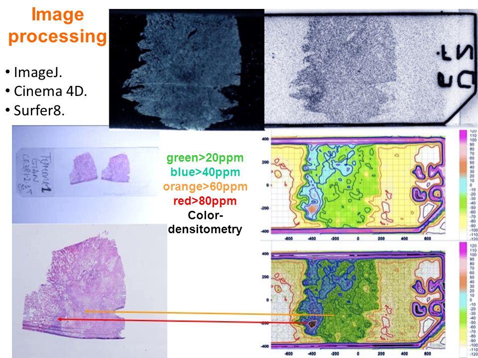 Image processing ImageJ. Cinema 4D. Surfer8. green>20ppm