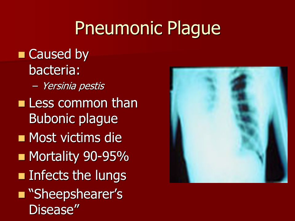 the causes transmission and treatment of bubonic plague Plague is a plausible diagnosis for people who are sick and live in, or have recently traveled to, the western united states or any other plague-endemic area the most common sign of bubonic plague is the rapid development of a swollen and painful lymph gland called a bubo.