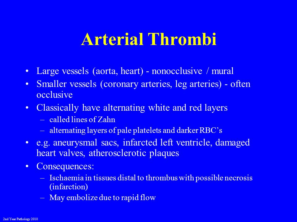 Vascular disturbances ii thrombosis and embolism ppt for Aortic mural thrombus treatment