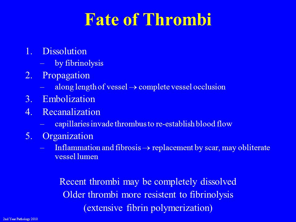 Vascular disturbances ii thrombosis and embolism ppt for Cardiac mural thrombi
