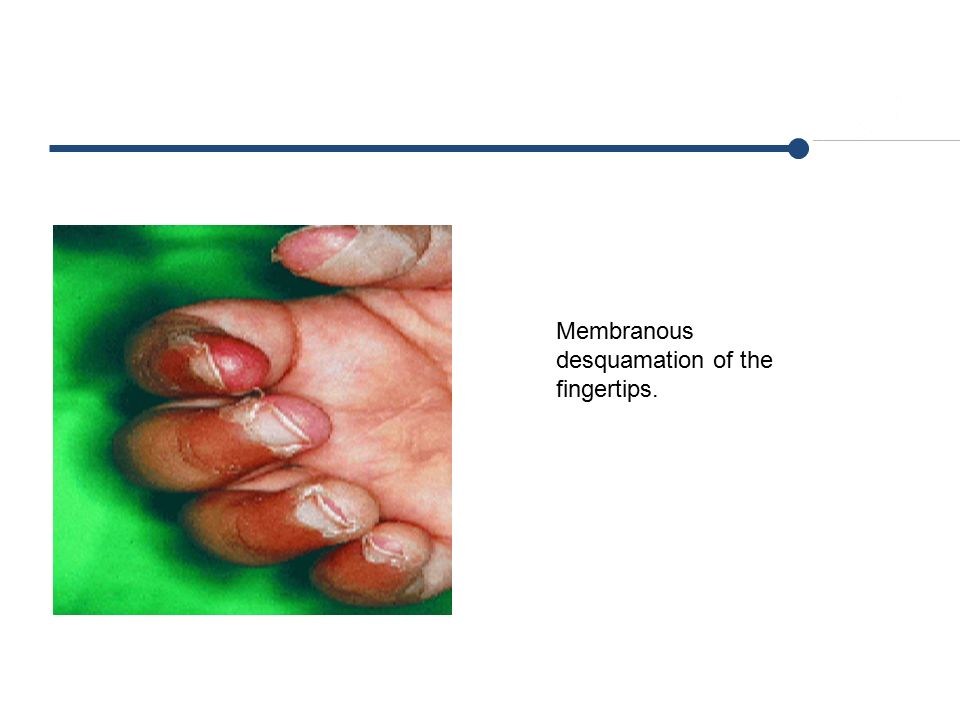 Membranous desquamation of the fingertips.