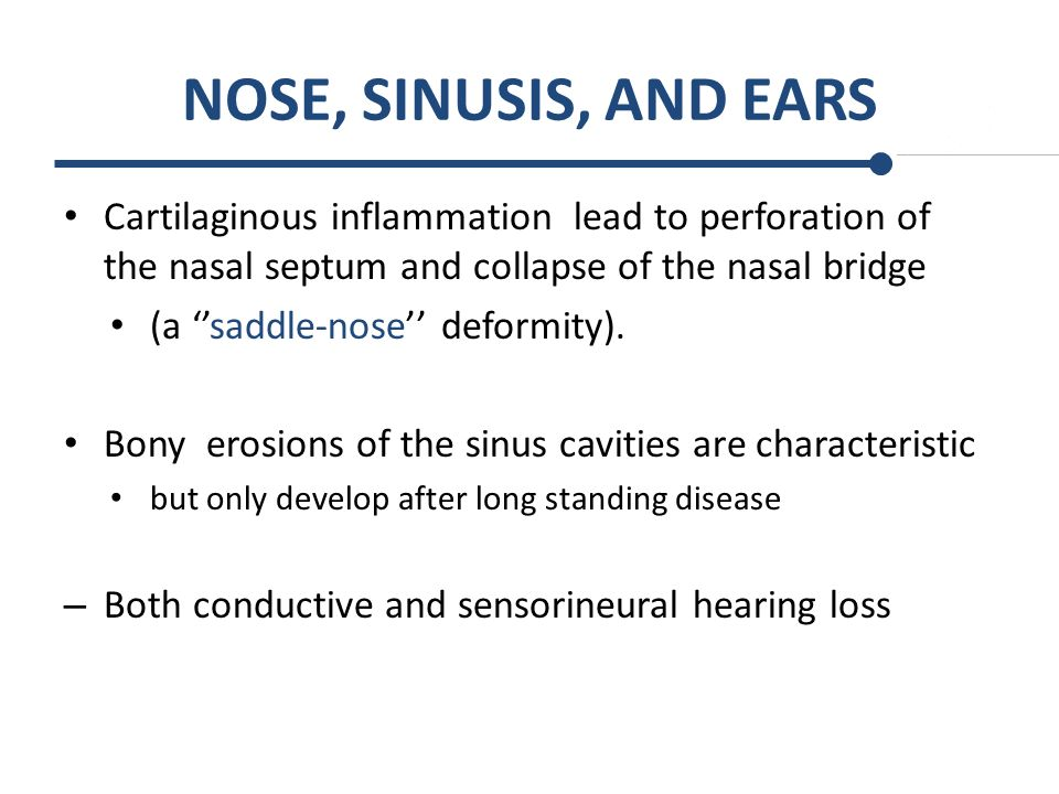 NOSE, SINUSIS, AND EARS Cartilaginous inflammation lead to perforation of the nasal septum and collapse of the nasal bridge.