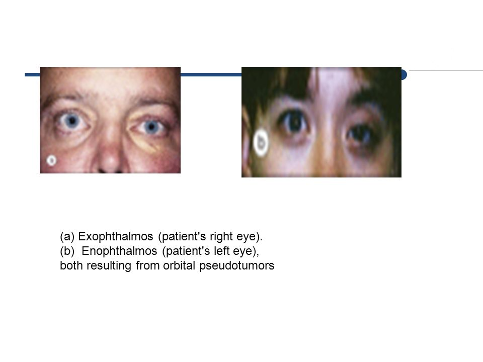 Exophthalmos (patient s right eye).