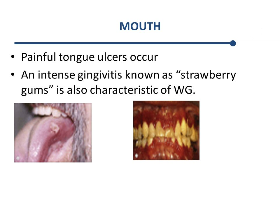 MOUTH Painful tongue ulcers occur.