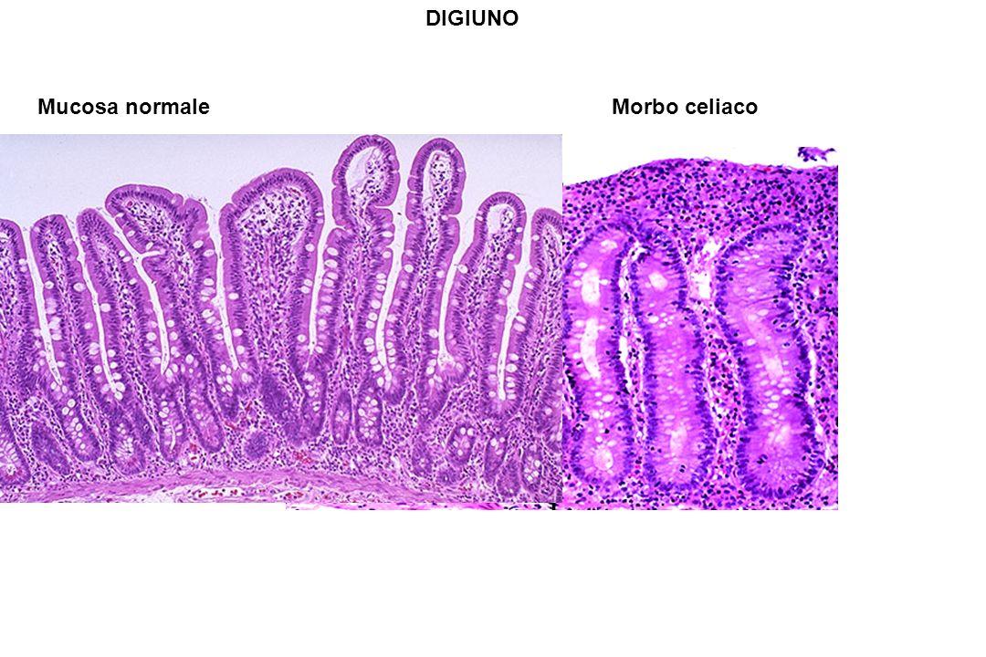 DIGIUNO Mucosa normale Morbo celiaco.