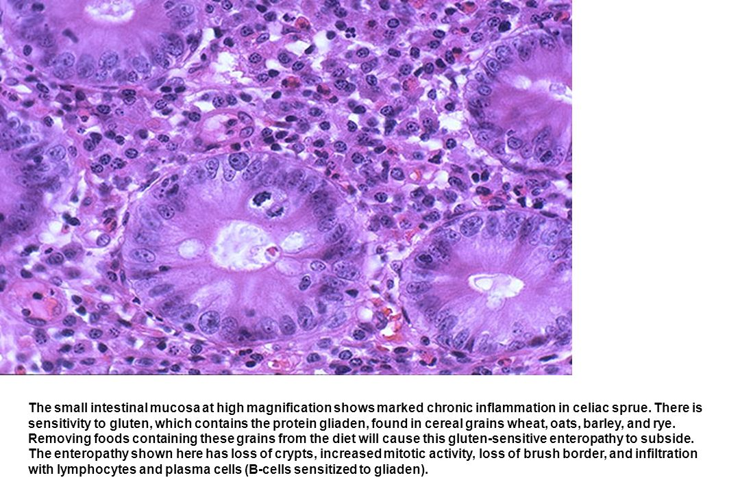 The small intestinal mucosa at high magnification shows marked chronic inflammation in celiac sprue. There is