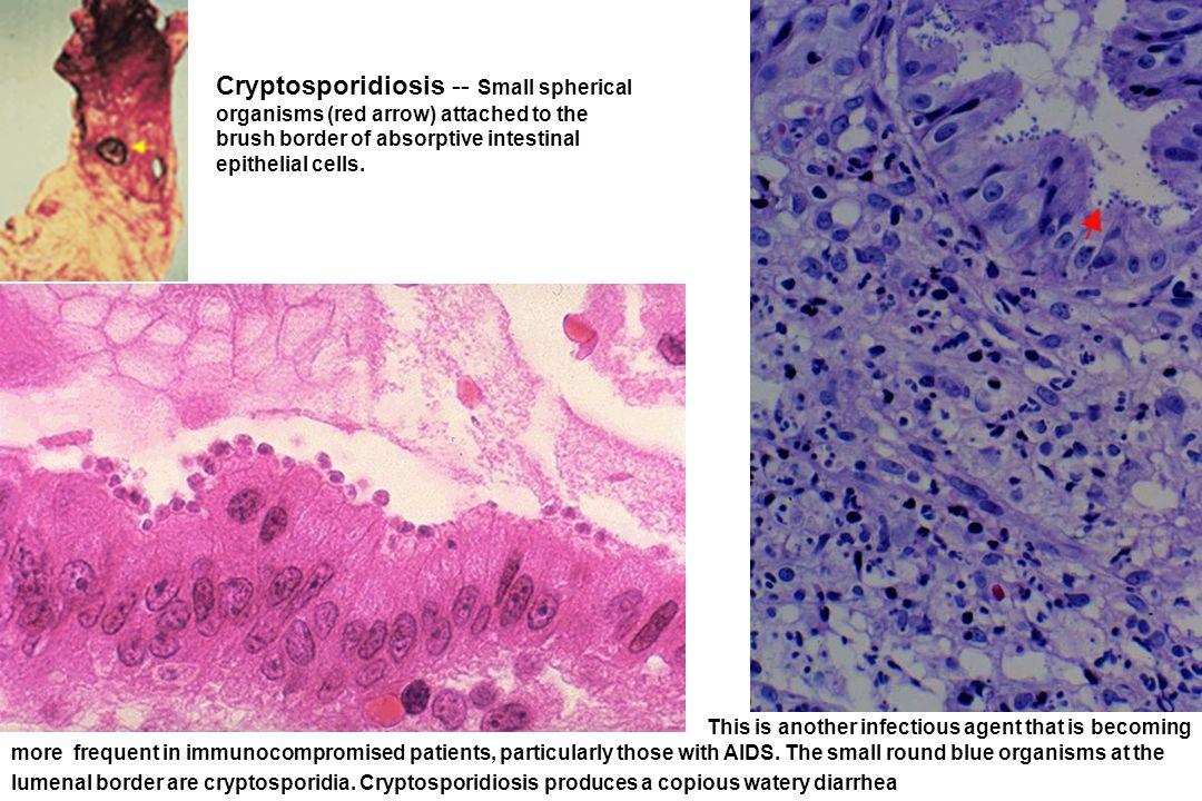 Cryptosporidiosis -- Small spherical