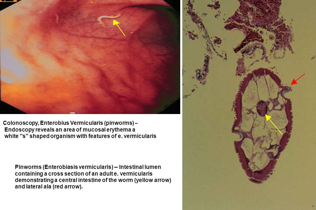 Colonoscopy, Enterobius Vermicularis (pinworms) –
