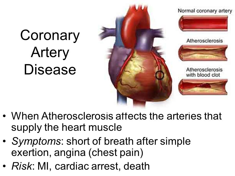 cornary artery disease