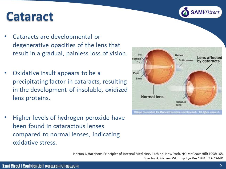 Degenerative Eye Disease >> A powerful combination of nutrients for eye health - ppt video online download