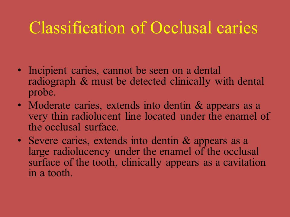 Classification of Occlusal caries