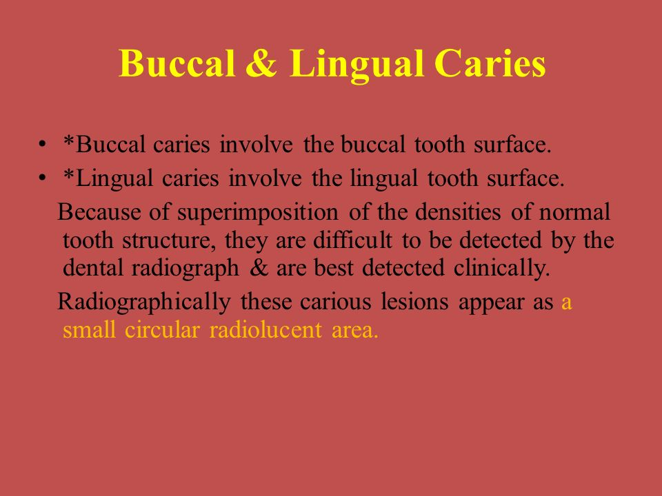Buccal & Lingual Caries