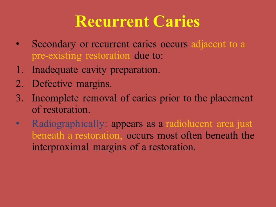 Recurrent Caries Secondary or recurrent caries occurs adjacent to a pre-existing restoration due to:
