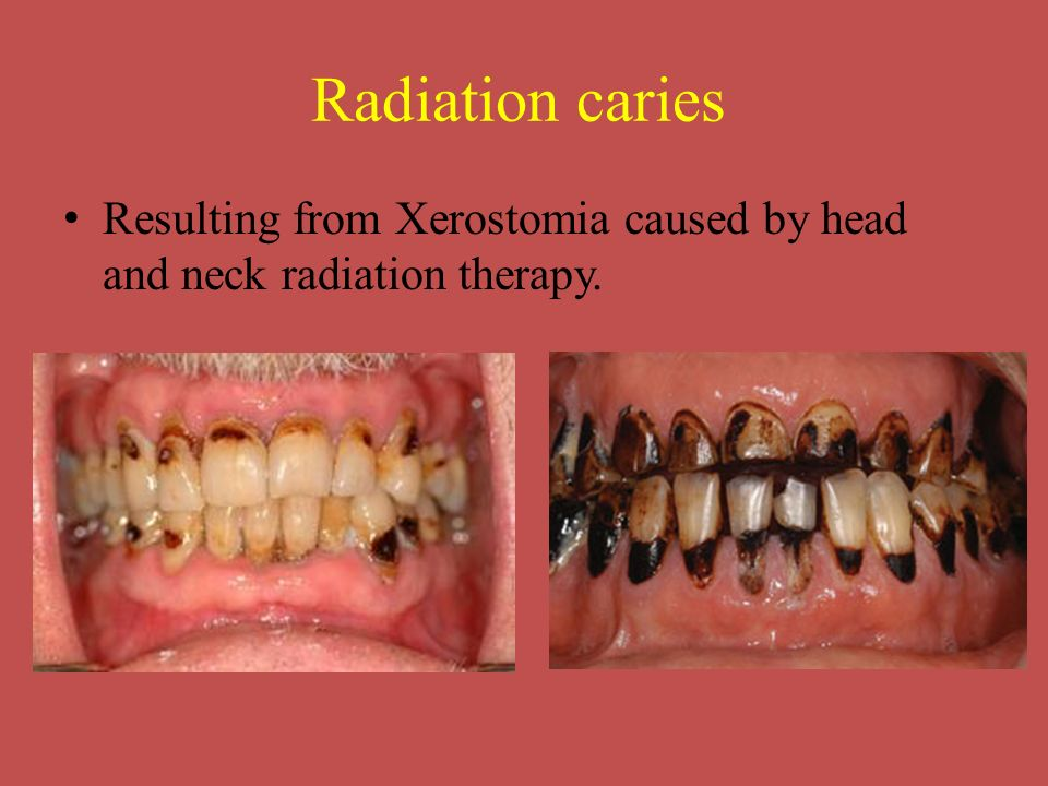 Radiation caries Resulting from Xerostomia caused by head and neck radiation therapy.