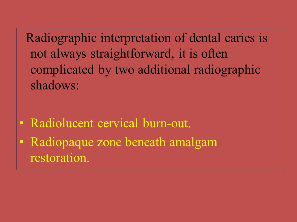 Radiographic interpretation of dental caries is not always straightforward, it is often complicated by two additional radiographic shadows: