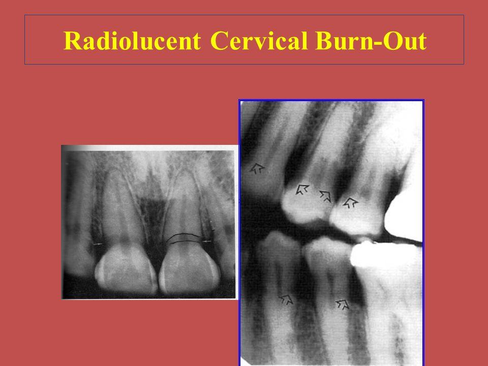 Radiolucent Cervical Burn-Out