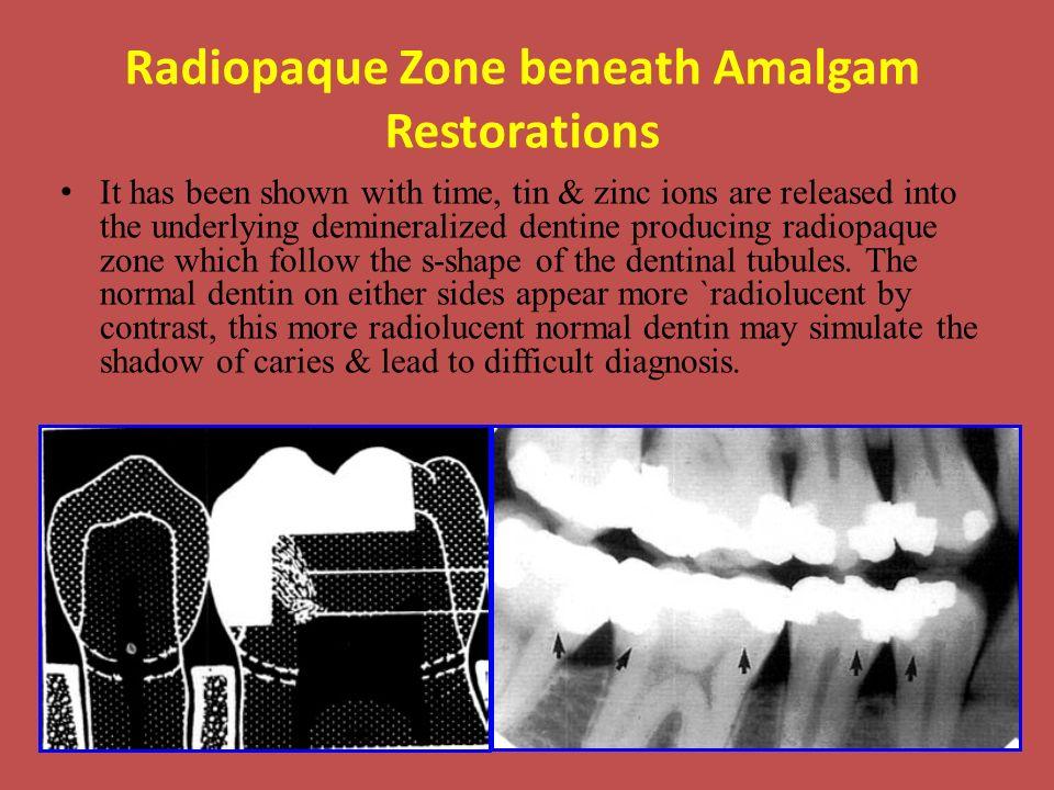 Radiopaque Zone beneath Amalgam Restorations