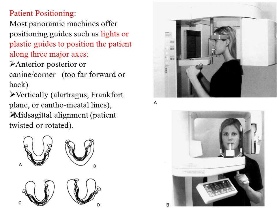 Dental Panoramic Radiography Ppt Video Online Download