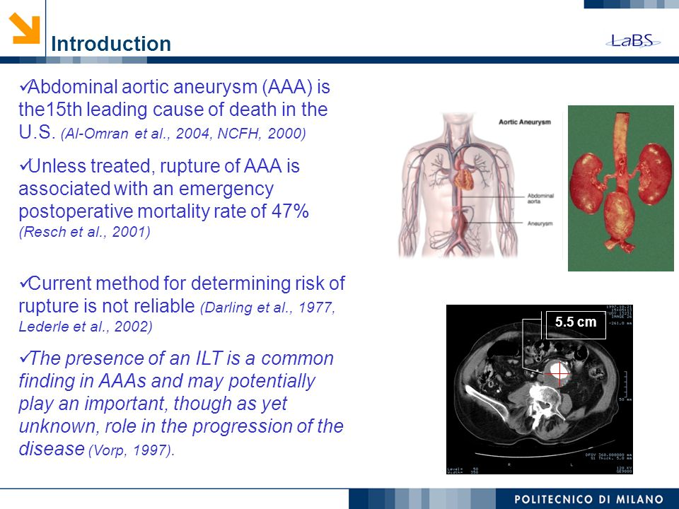 Introduction Abdominal aortic aneurysm (AAA) is the15th leading cause of death in the U.S. (Al-Omran et al., 2004, NCFH, 2000)