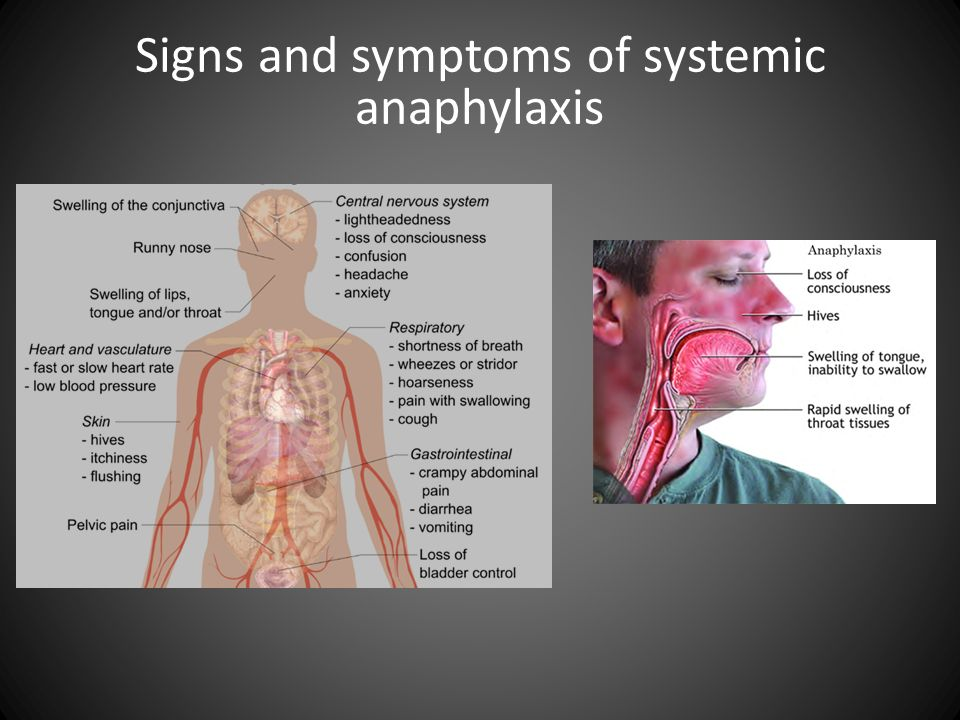 Signs and symptoms of systemic anaphylaxis