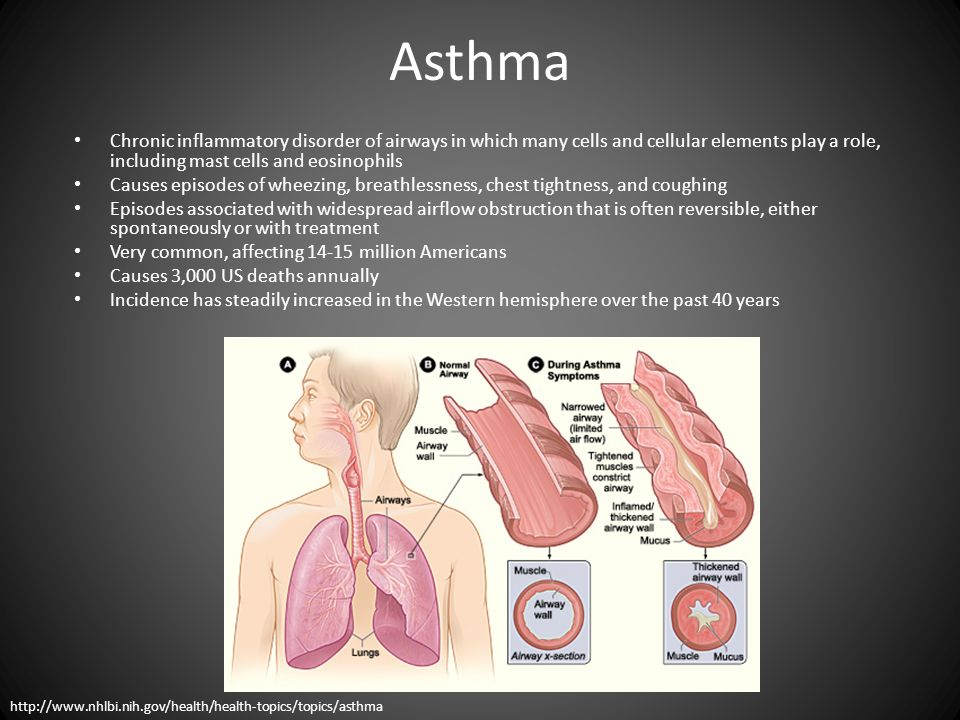 Asthma Chronic inflammatory disorder of airways in which many cells and cellular elements play a role, including mast cells and eosinophils.