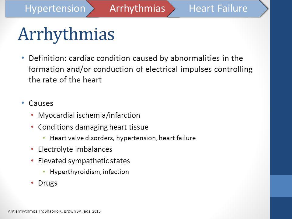 Arrhythmias Hypertension Arrhythmias Heart Failure