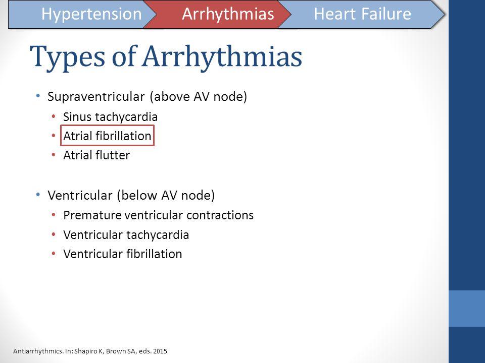 Types of Arrhythmias Hypertension Arrhythmias Heart Failure