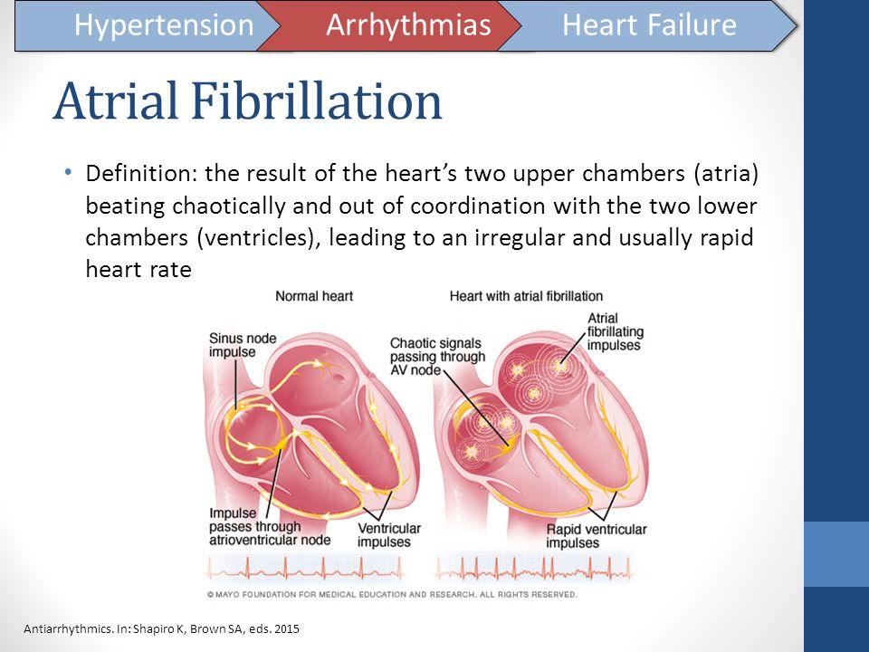 Atrial Fibrillation Hypertension Arrhythmias Heart Failure
