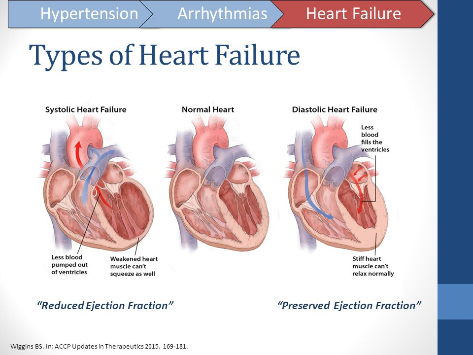 Types of Heart Failure Hypertension Arrhythmias Heart Failure