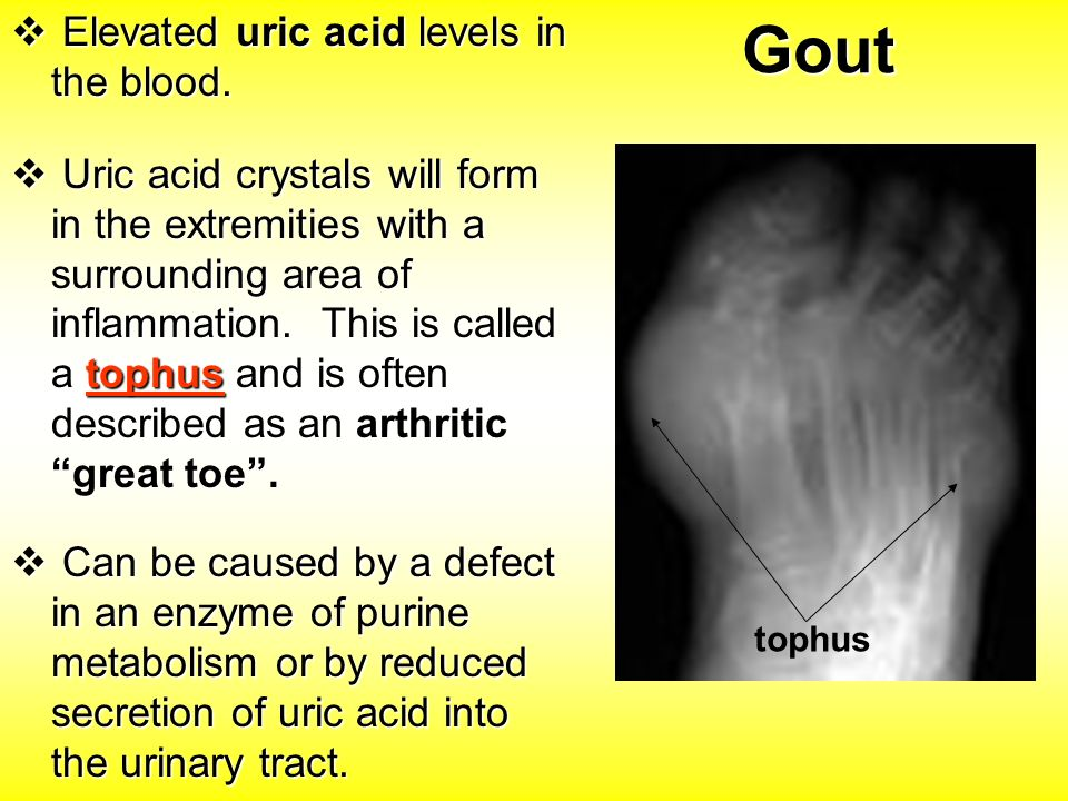 gout uric acid levels Elevated uric acid levels are a key risk factor for developing gout however, the  actual frequency of gout attacks relative to uric acid.