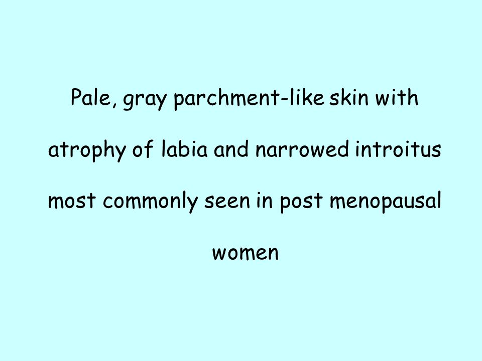 Pale, gray parchment-like skin with atrophy of labia and narrowed introitus most commonly seen in post menopausal women