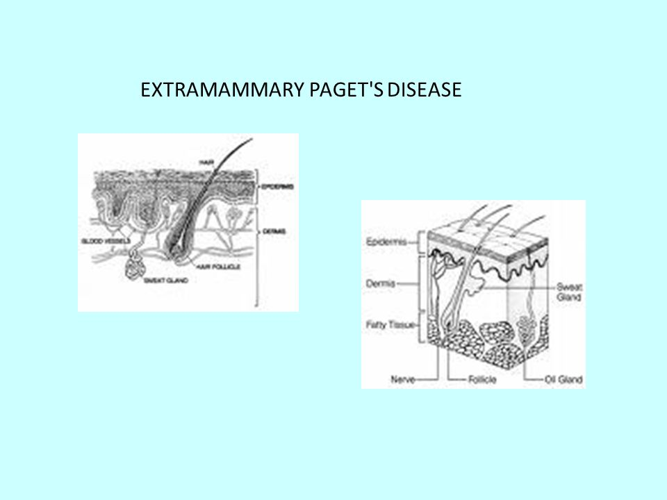 EXTRAMAMMARY PAGET S DISEASE