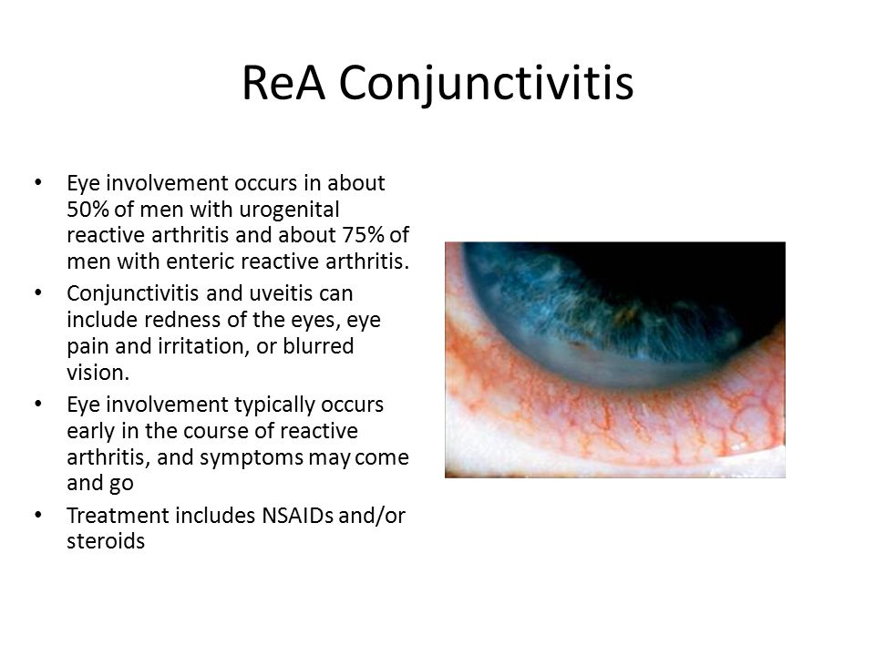 Uveitis: Systemic and ...