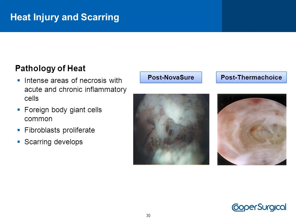 Heat Injury and Scarring