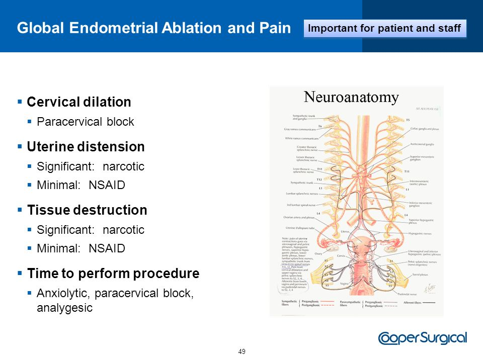 Global Endometrial Ablation and Pain