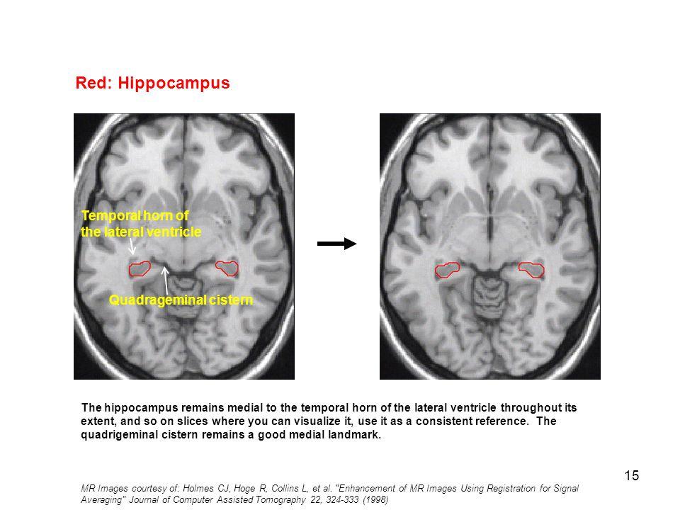 Tolle Anatomie Des Gehirns Auf Ct Scan Fotos - Anatomie Ideen ...