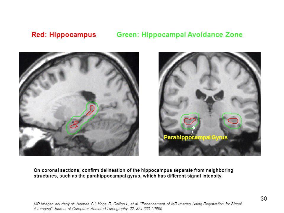 Beautiful Hippocampus Mri Anatomy Illustration Anatomy Ideas