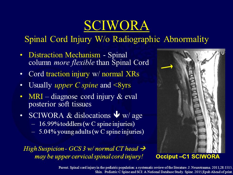 Fractures Of The Spine In Children Ppt Video Online Download