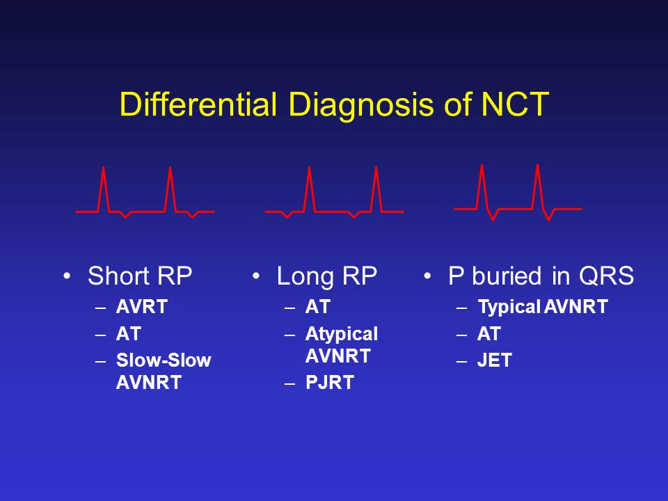 Supraventricular Arrhythmias Aat A Flutter A Fib Ppt Video