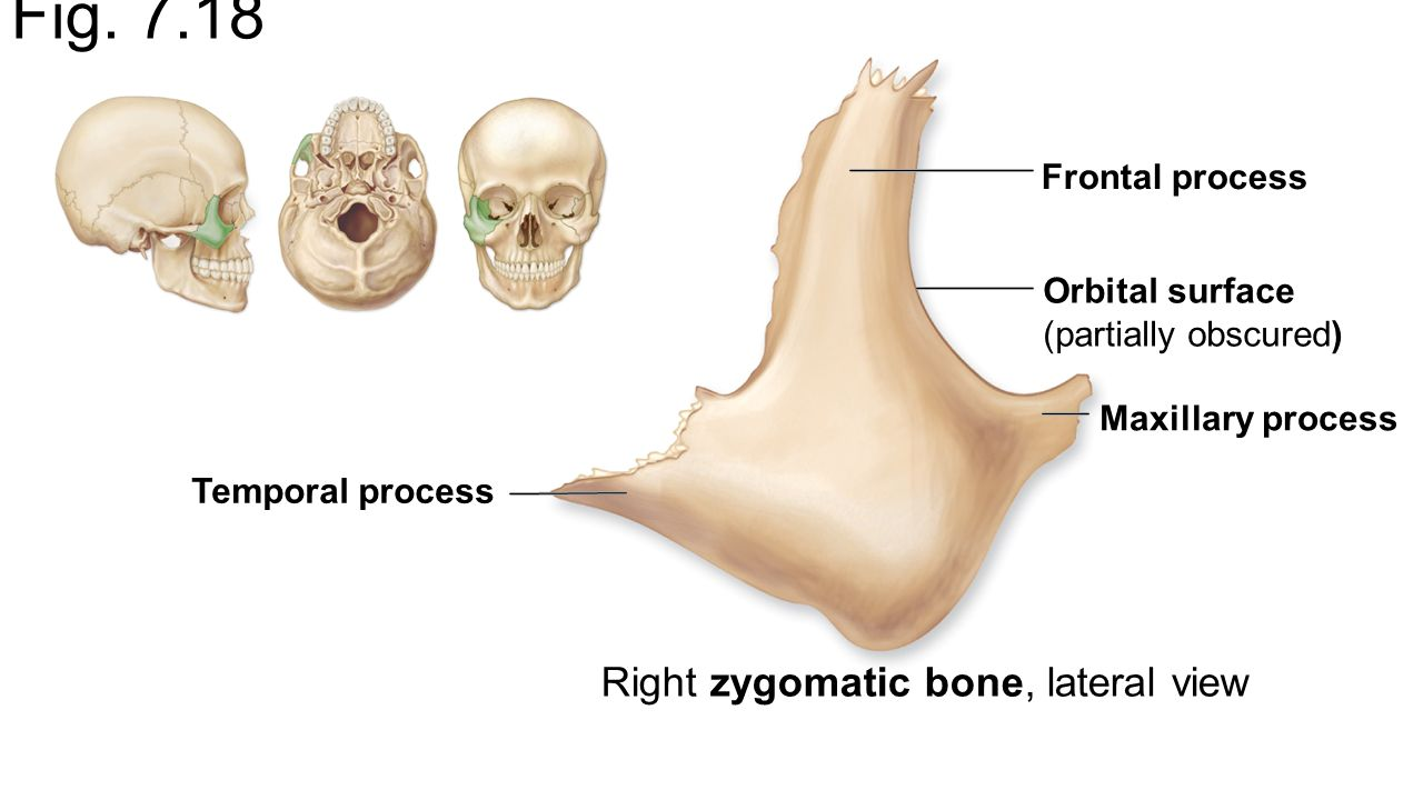 Cartilage and Bones Axial Skeleton - ppt video online download