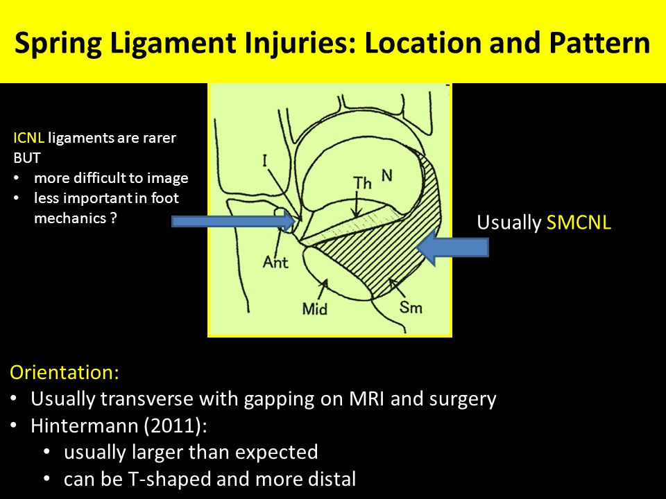 Treatment of Deltoid Ligament Injuries - ppt video online ...