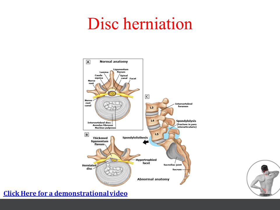 Disc herniation Click Here for a demonstrational video