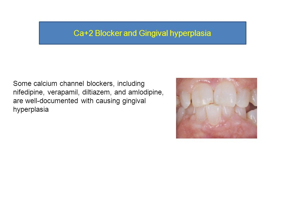 Management of amlodipine-induced gingival enlargement: Series of three cases
