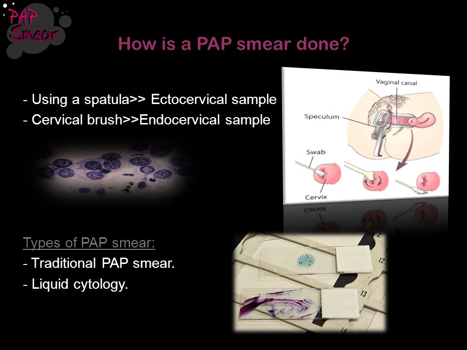 How is a PAP smear done