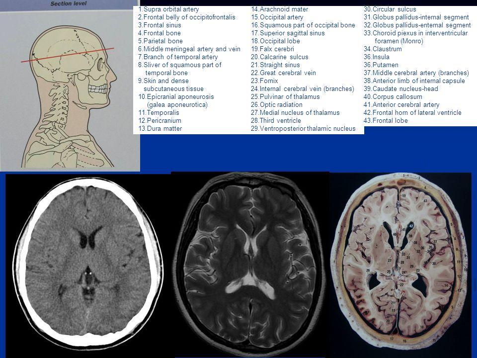 Caudate Nucleus And Fornix Brain (CT, MRI & A...